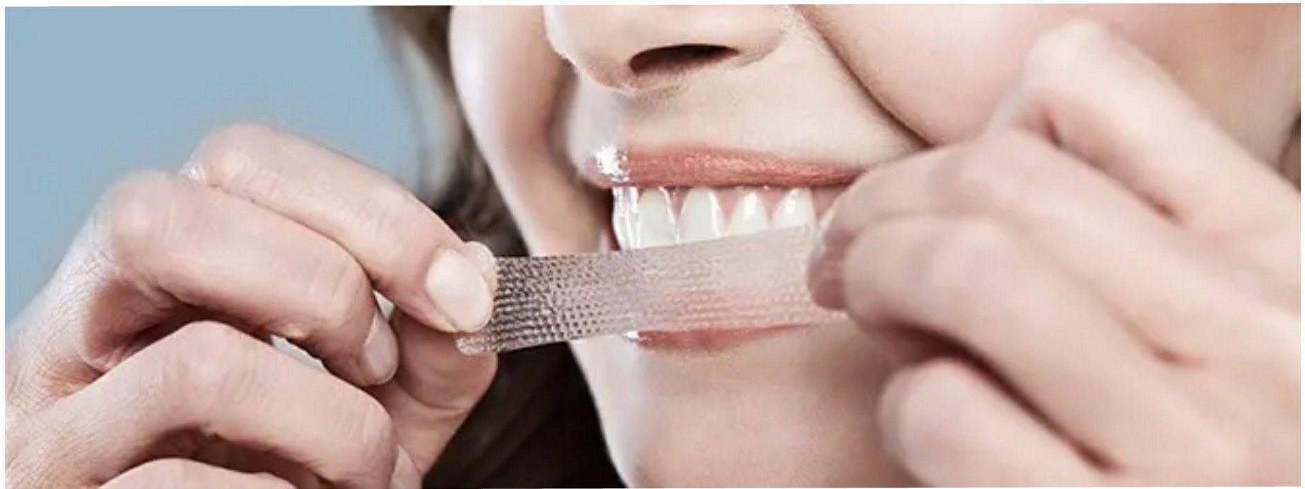 نوار چسب سفید کننده دندان